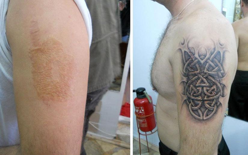 Мужская татуировка тату на шраме скрывающие шрам