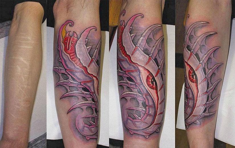 Перекрытие шрама татуировкой