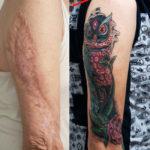 Татуировка поверх шрама на руке
