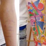 Абстрактный узор тату на шрамах в области предплечья