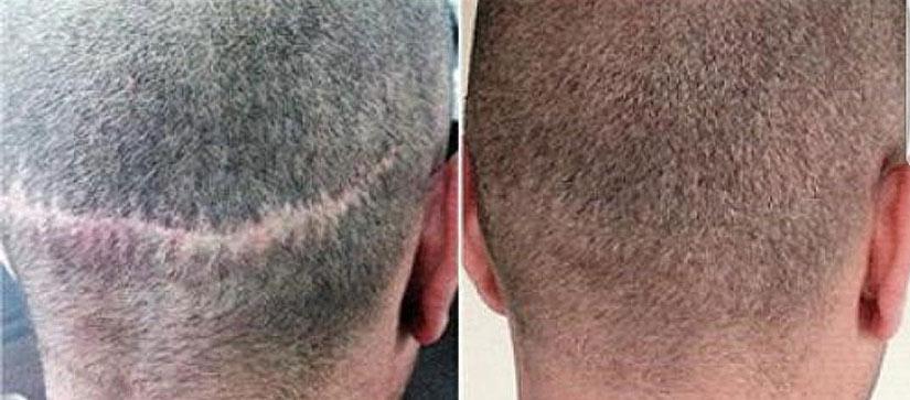 Перекрытие татуировкой шрамов на голове